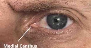 Thermal imaging camera for COVID-19 fever screening